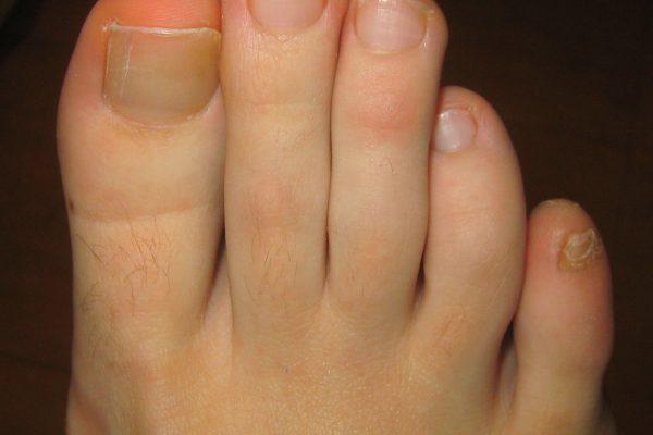 Ortopodología (adaptación de plantillas y ortesis-protesis de silicona  a medida)